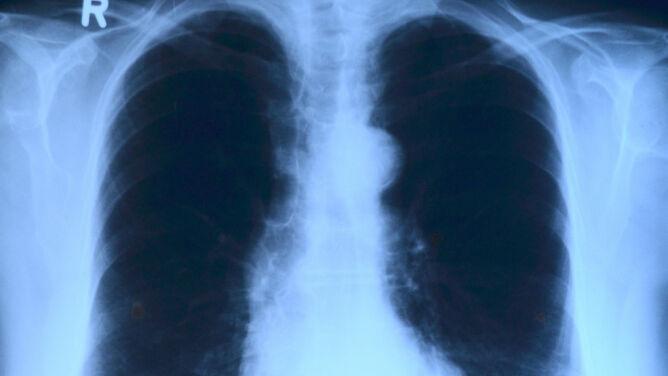 """Przełomowy lek na raka płuc. <br />""""Powinien być standardem"""""""